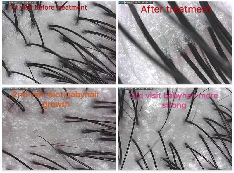 Scalp Treatment for Thinning Hair at 99 Percent