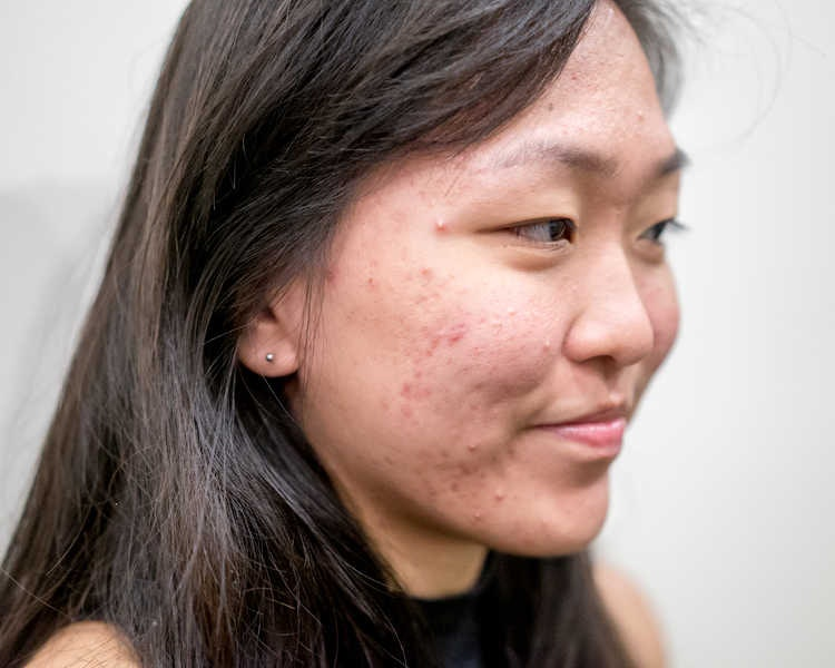 Face with Pimples Before Facial at Organics Beauty