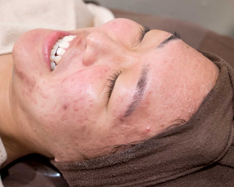 Application of Clarifying Clay Face Mask for Pimples at Organics Beauty