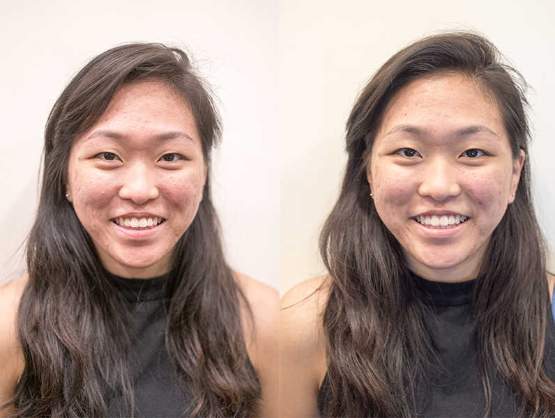 Before and After Acne Facial at Organics Beauty