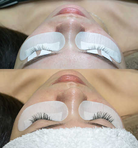 Sensitive eyes are not suitable for lash extensions