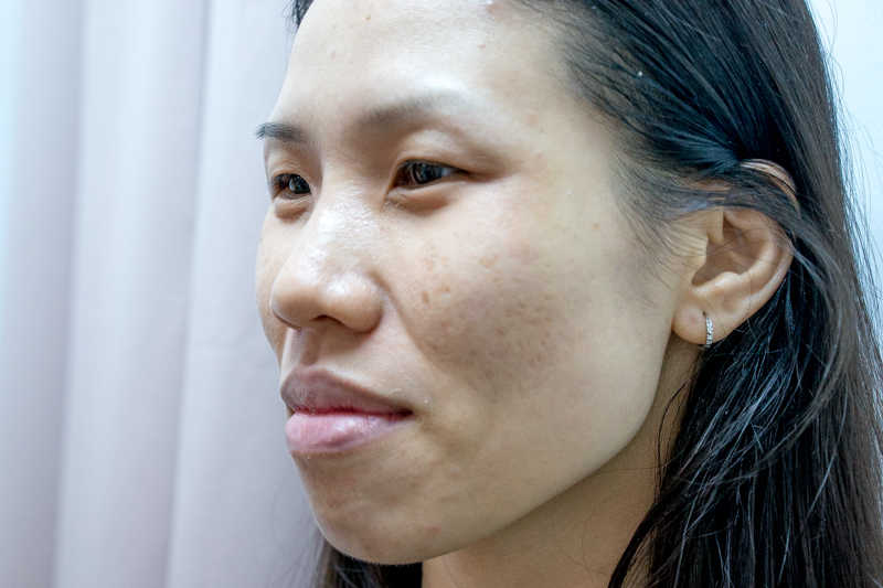 Healing Skin From Pimples with Acne Treatment at Apple Queen Beauty