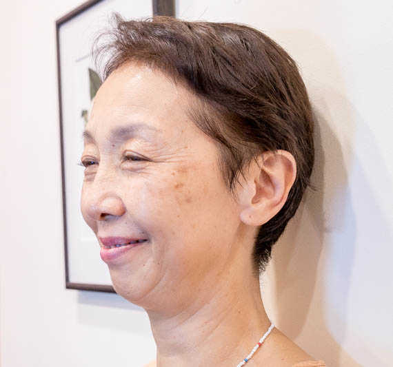Improvements After Herb Facial on Aging Skin at Organics Beauty