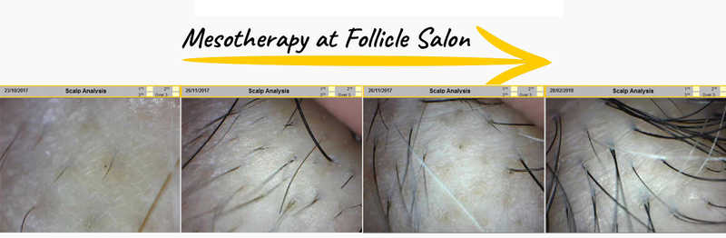 Mesotherapy for Thinning Hair at Folicle Salon