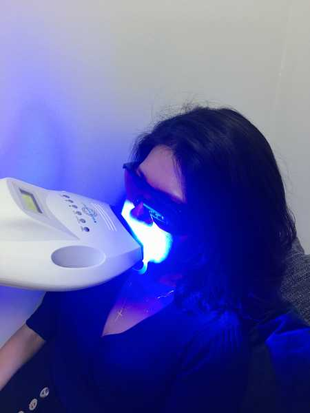 LED Light Therapy to Whiten Teeth at Michaela
