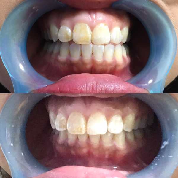 Whiter Teeth Before and After LED Therapy at Michaela
