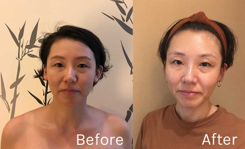 Before and After Facial for Migraines and TMJ at Facia Ginza