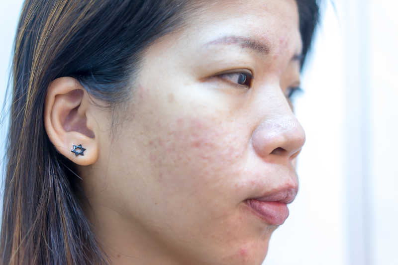 After few acne treatments at Apple Queen Beauty