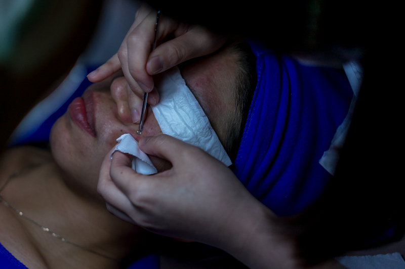 Acne Facial Treatment at Apple Queen Beauty