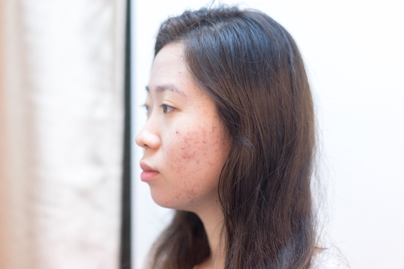 Severe Acne Cured After 5 Visit of Acne Treatment at Apple Queen Beauty