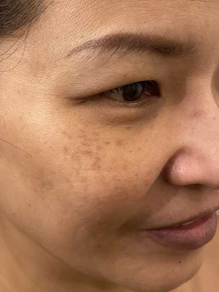 Ageing Skin with Dark Spots