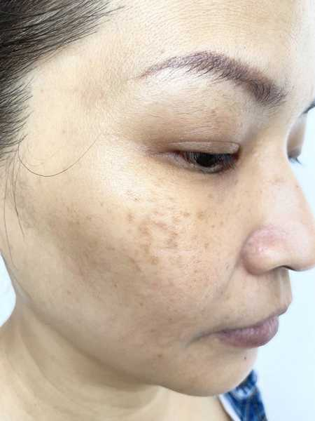 Fresh and Lifted Face After Stem Cell Facial at Allumer Japanese Beauty Salon