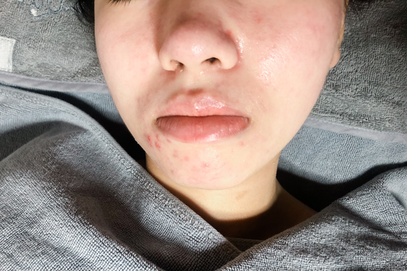 Vitamin B5 Booster Reduce Swelling and Redness After Facial at Apple Queen Beauty