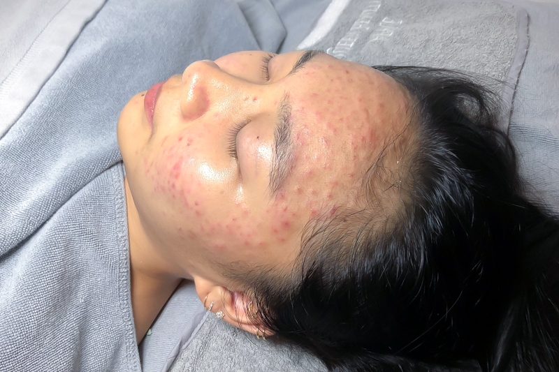 Application of Serum and Peel Off Mask During Facial Treatment at Apple Queen Beauty
