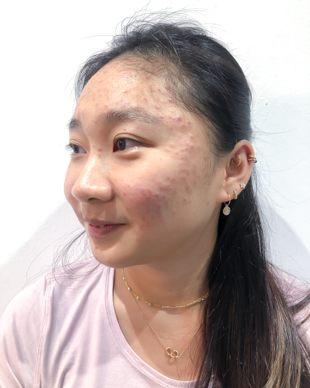My Pimples During Circuit Breaker Before Facial Treatment at Apple Queen Beauty