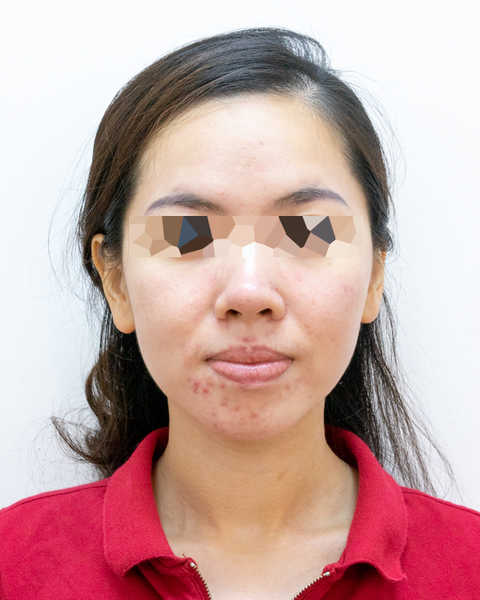 Adult Acne Before Facial at Apple Queen Beauty