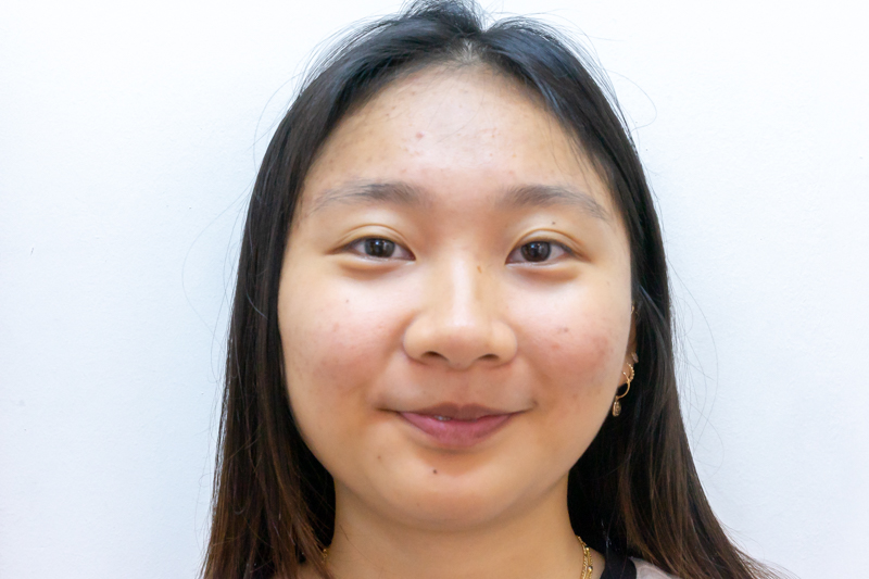 Clearer Skin on Second Facial Treatment at Apple Queen Beauty