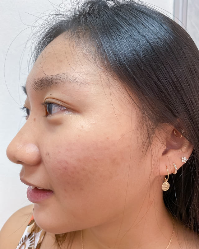 My Skin Before Extraction at Apple Queen Beauty
