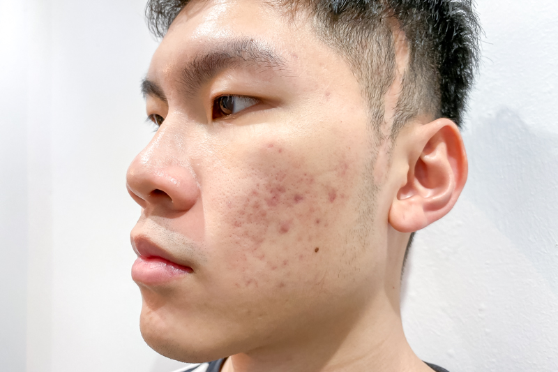 Improved Severe Cystic Acne After Facial Treatment at Apple Queen Beauty