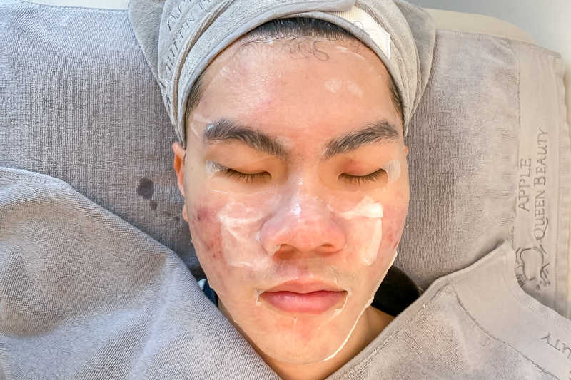 Application of Toner After Extraction at Apple Queen Beauty