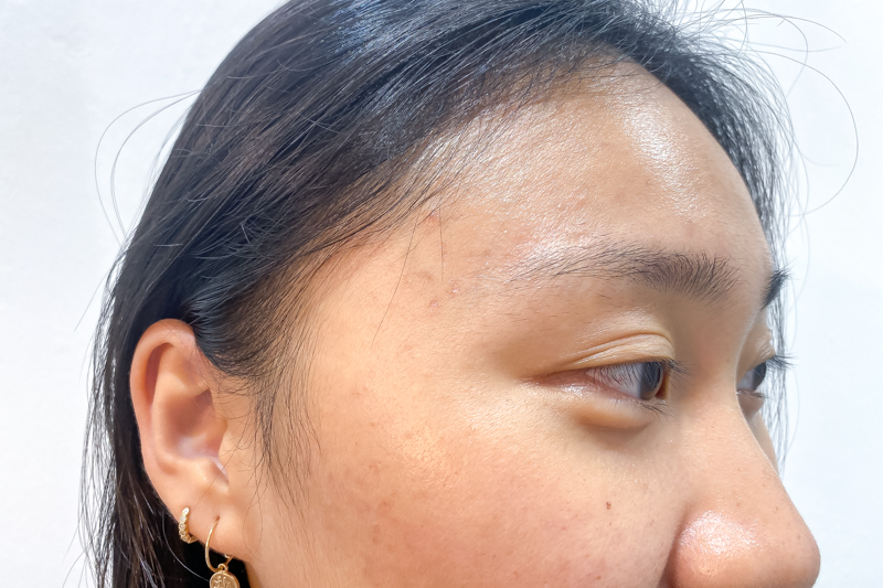 My Skin After 3 Session of Facial at Apple Queen Beauty