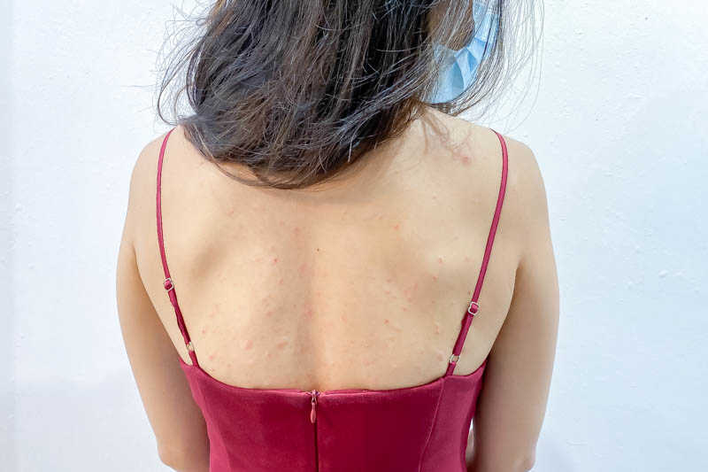 Improved Back Acne After Back Facial at Apple Queen Beauty